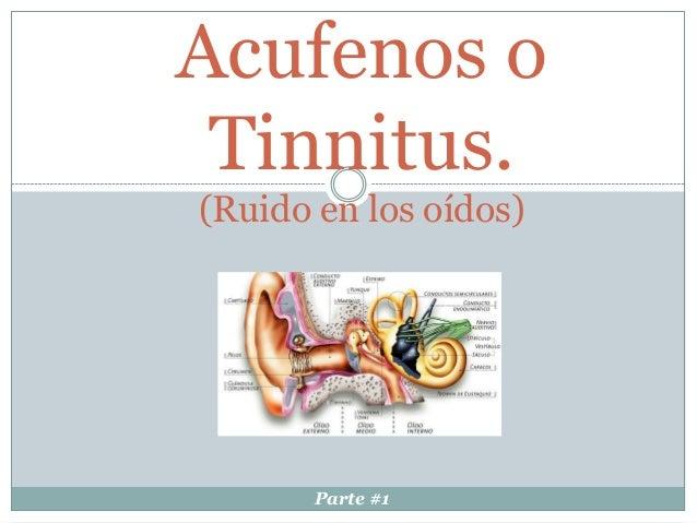 Acufenos o Tinnitus. (Ruido en los oídos) Parte #1