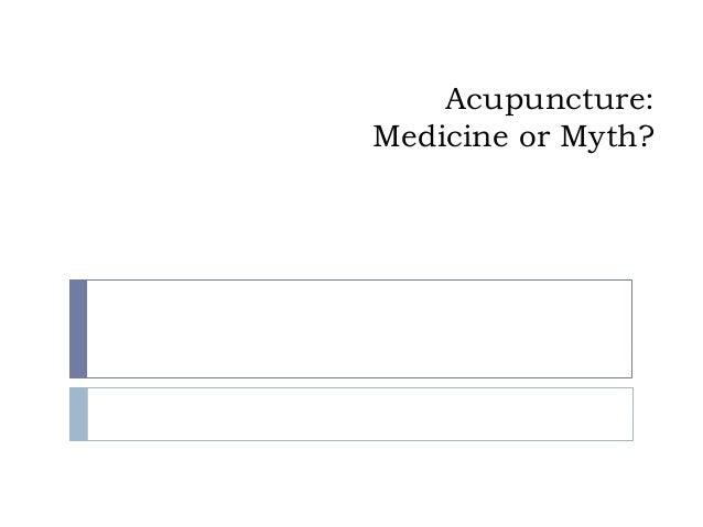 Acupuncture: Medicine or Myth?