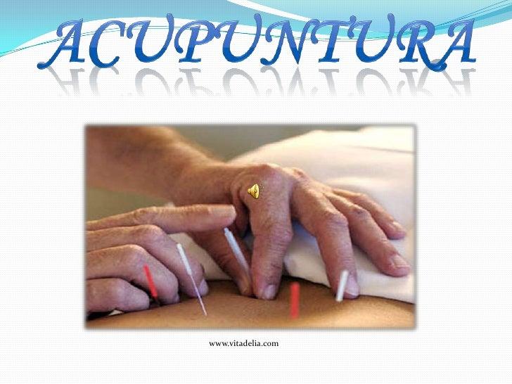 acupuntura<br />www.vitadelia.com<br />