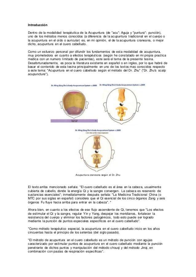 Acupuntura en el cuero cabelludo según el método del dr. zhu