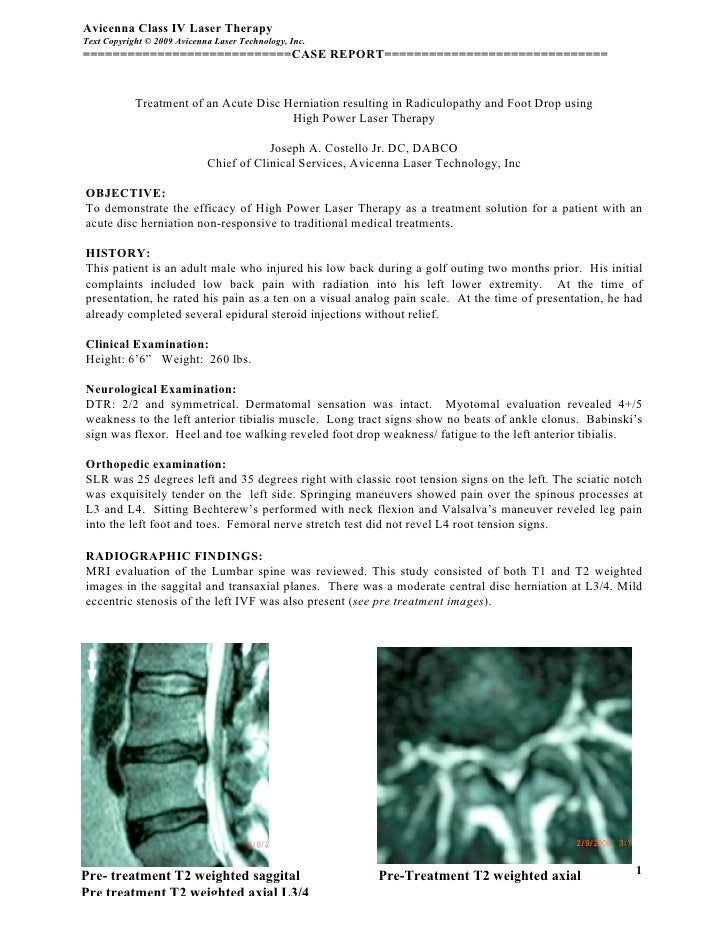 Avicenna Class IV Laser Therapy Text Copyright © 2009 Avicenna Laser Technology, Inc. ============================CASE REP...