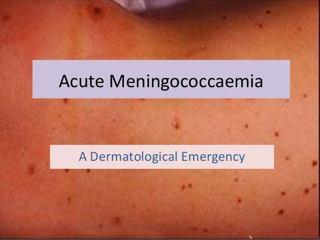 Acute Meningococcaemia A Dermatological Emergency