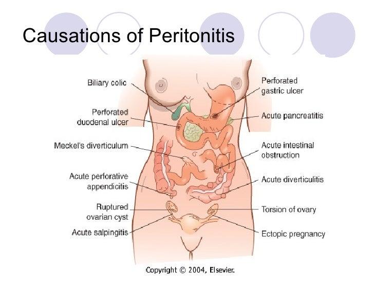 Diagram Of Appendicitis