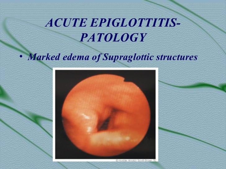 ACUTE EPIGLOTTITIS-          PATOLOGY• Marked edema of Supraglottic structures
