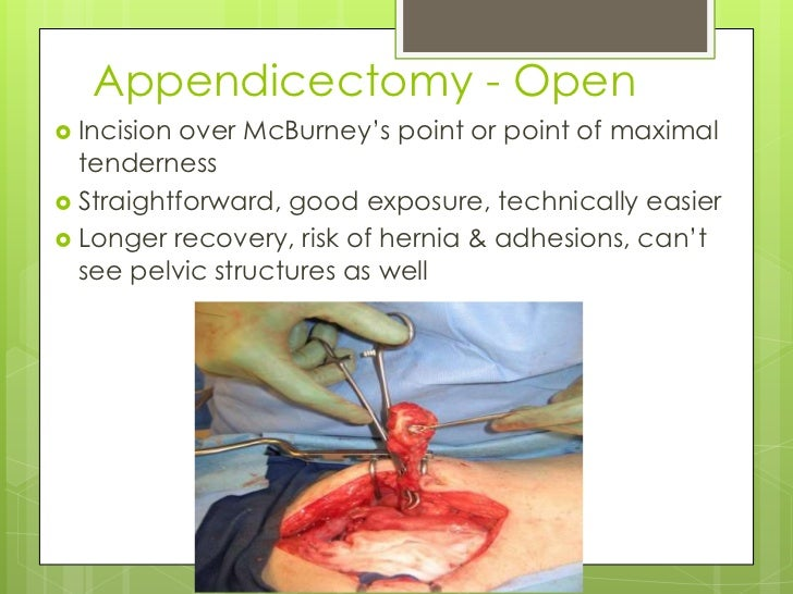 Appendectomy Open Surgery Recovery Time >> Acute appendicitis