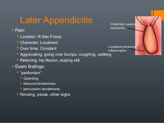 Appendix Pain Location – applecool.info