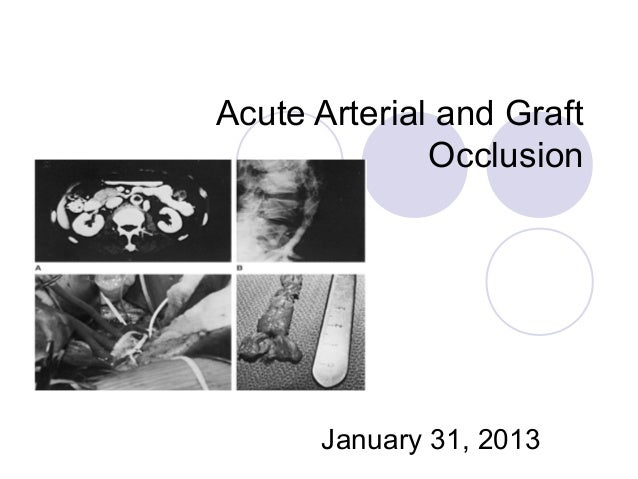 Acute Arterial and Graft Occlusion January 31, 2013