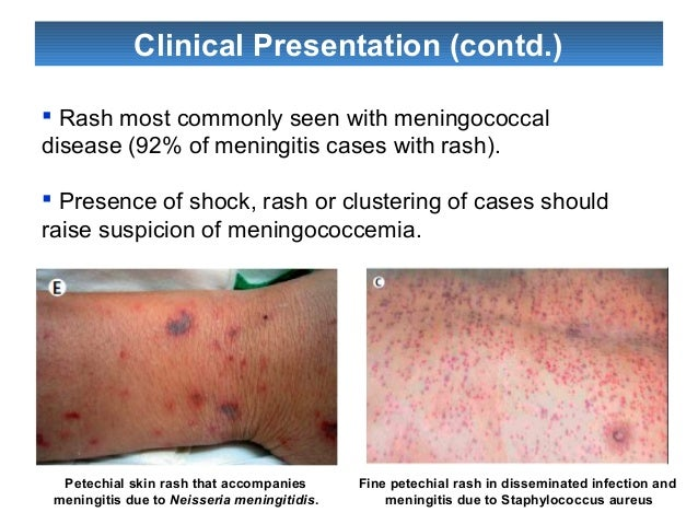Meningitis | Nursing School and Education | Pinterest | Medical ...
