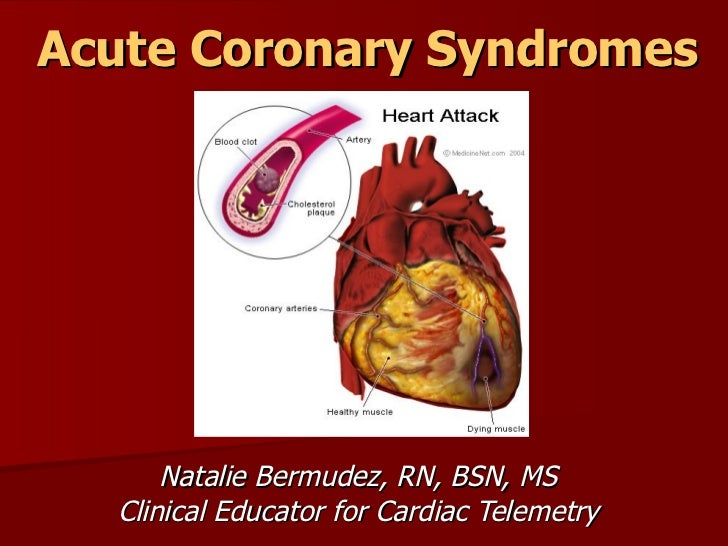 Acute Coronary Syndromes      Natalie Bermudez, RN, BSN, MS  Clinical Educator for Cardiac Telemetry