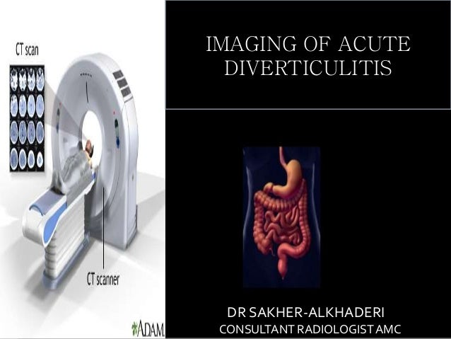 Nutritional Management of Diverticulitis with Abscess  amp  Colon     Contabilit   Inflamed Diverticulum is protruding through the muscularis mucosa  A   Appendiceal lumen  B  is full of inflammatory cells