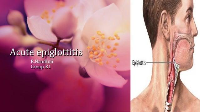 Acute epiglottitisAcute epiglottitis R.NandiniiR.Nandinii Group K1Group K1