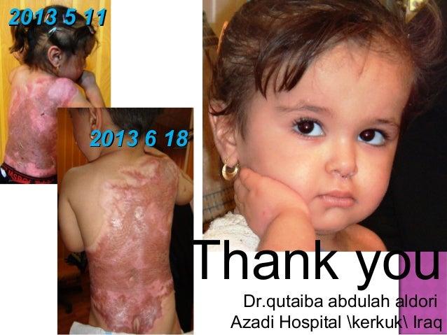 Acute graft versus host disease by  dr. qutaiba abdulah