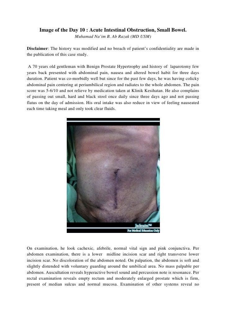 Image of the Day 10 : Acute Intestinal Obstruction, Small Bowel.                         Muhamad Na'im B. Ab Razak (MD USM...