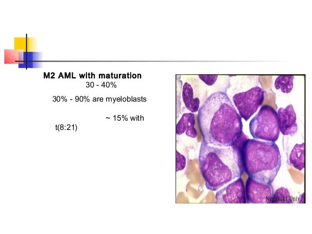 M2 AML with maturation  30 - 40%  30% - 90% are myeloblasts  ~ 15% with  t(8:21)
