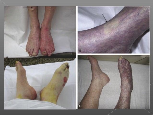 Acute limb ischemia Slide 3