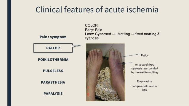 Clinical features of acute ischemia Pain : symptom PALLOR POIKILOTHERMIA PULSELESS PARASTHESIA PARALYSIS COLOR Early: Pale...