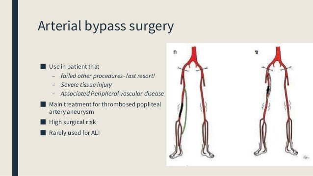 Amputation Performed as the first (index) procedure in ■ A non-salvageable (Class III limb) ■ Low potential of limb salvag...