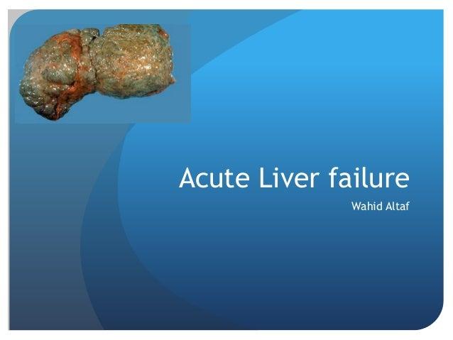 Acute Liver failure Wahid Altaf