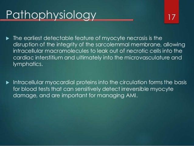 pathophysiology of acute myocardial infarction pdf