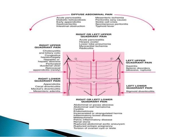 Acute pain abdomen