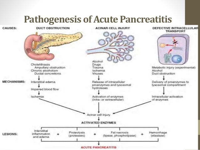 acute pancreatitis Acute pancreatitis: etiology, clinical presentation, diagnosis, and therapy mitchell s cappell, md, phd division of gastroenterology, department of medicine, william.