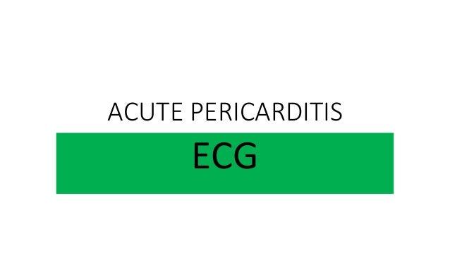 ACUTE PERICARDITIS ECG