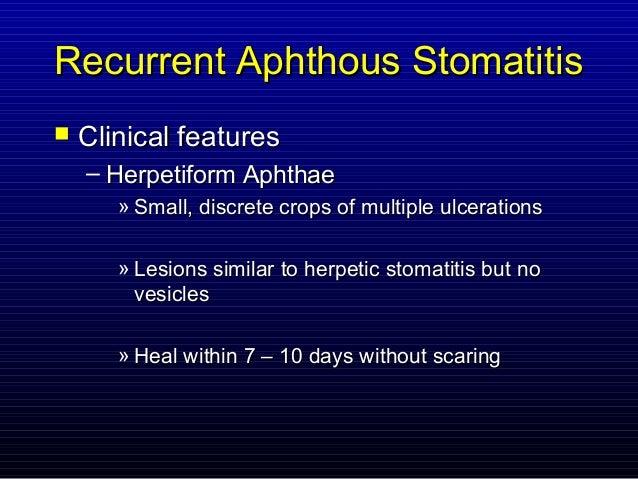 Recurrent Herpetic Stomatitis