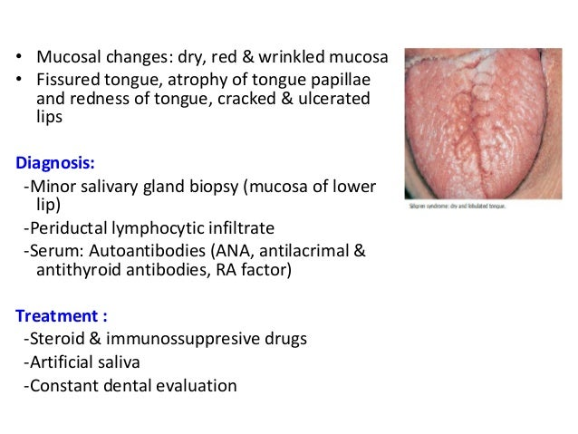 crack in tongue diagnosis