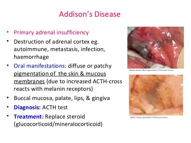 Addisons Disease Oral