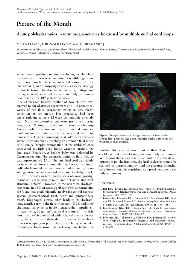 Ultrasound Obstet Gynecol 2010; 35: 253–254Published online in Wiley InterScience (www.interscience.wiley.com). DOI: 10.10...
