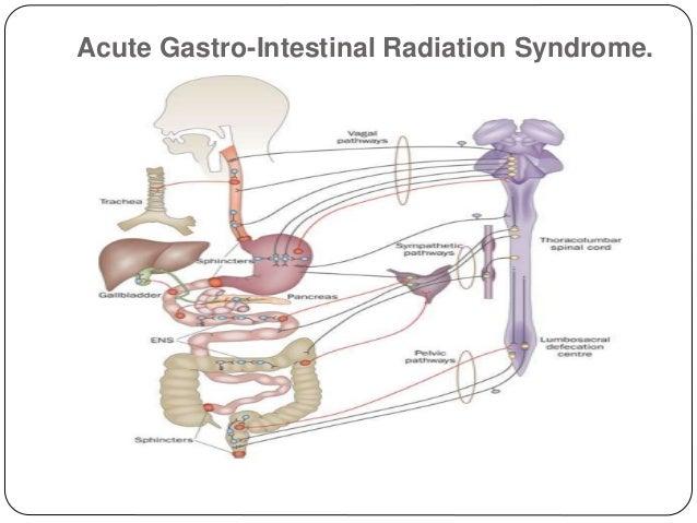 acute radiation gastro intestinal syndrome. Black Bedroom Furniture Sets. Home Design Ideas