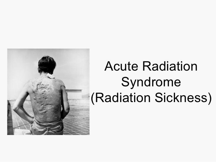 Acute Radiation Syndrome (Radiation Sickness)