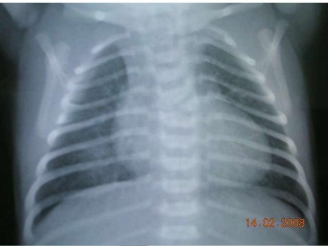 Acute Rheumatic Fever Slide 2