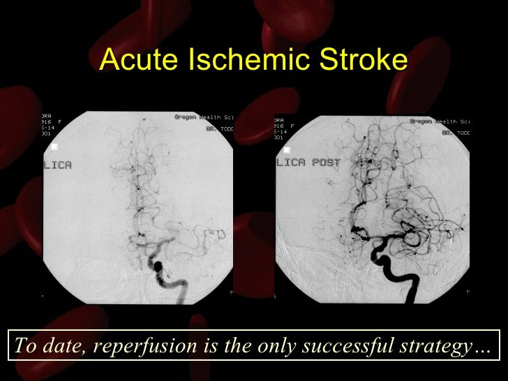 dating ischemic stroke radiographics Silent brain infarction sbi independently raised the risk of recurrent ischemic stroke that are useful in dating ischemic stroke radiographics.
