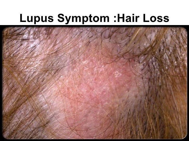 Acute systemic lupus erythematosus lupus or something else sciox Image collections