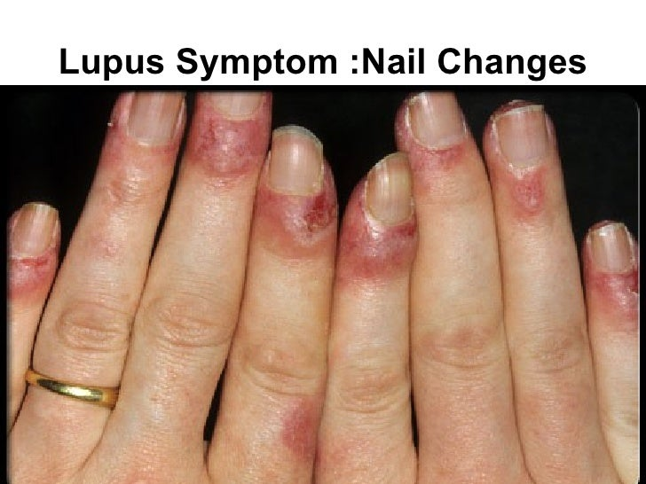 Acute systemic lupus erythematosus lupus symptom light sensitivity sciox Image collections