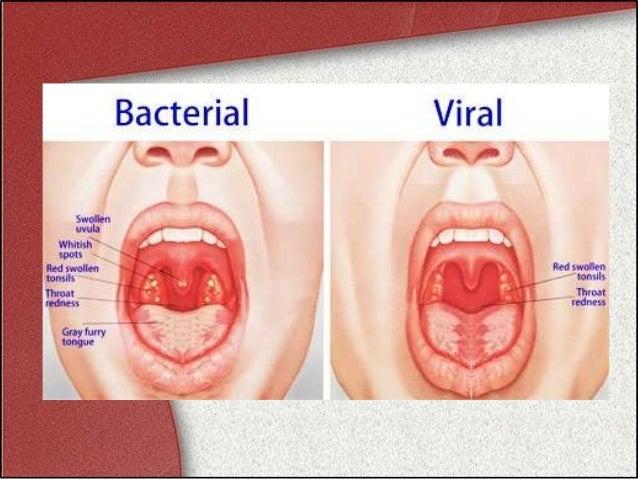 acute tonsillitis, Skeleton