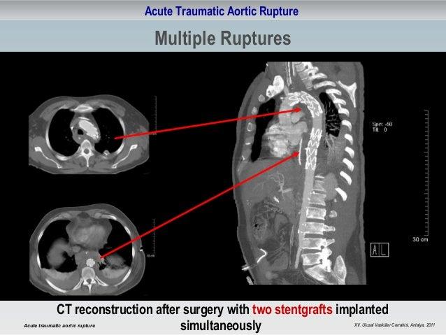 Acute traumatic aortic rupture