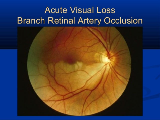 Acute Retinal Artery Occlusion Pictures to Pin on ...