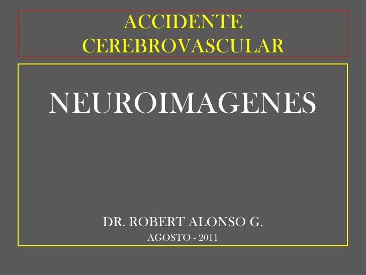 ACCIDENTE CEREBROVASCULAR<br />NEUROIMAGENES<br />DR. ROBERT ALONSO G.<br />AGOSTO - 2011<br />