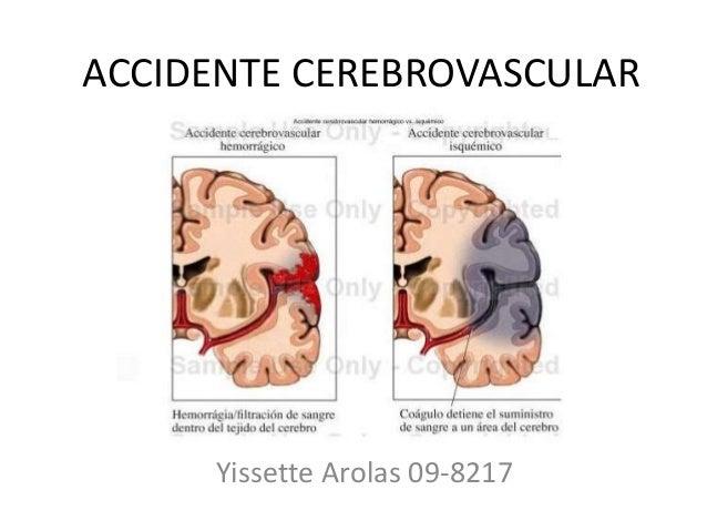 ACCIDENTE CEREBROVASCULAR Yissette Arolas 09-8217