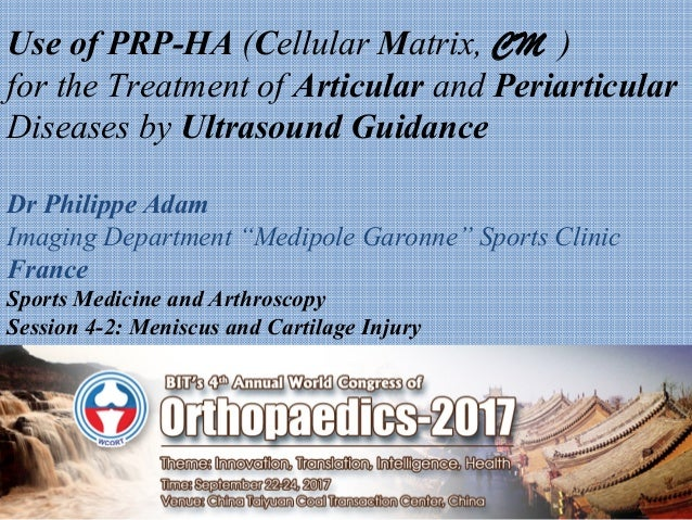 Use of PRP-HA (Cellular Matrix, CM ) for the Treatment of Articular and Periarticular Diseases by Ultrasound Guidance Dr P...
