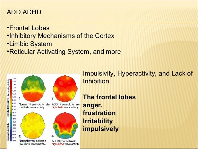 ADD and ADHD cause cure