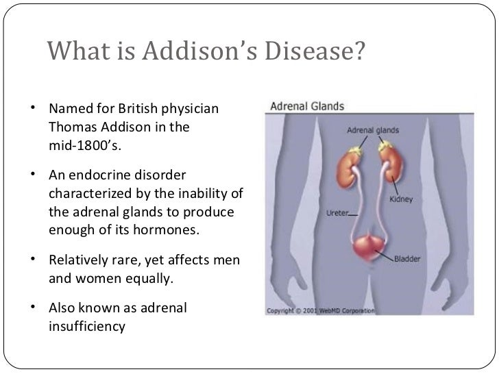 addisons disease Addison's disease a rare condition requiring life-long, daily treatment with replacement steroid hormones.