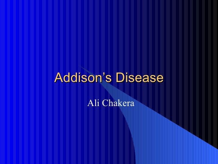 Addison's Disease Ali Chakera