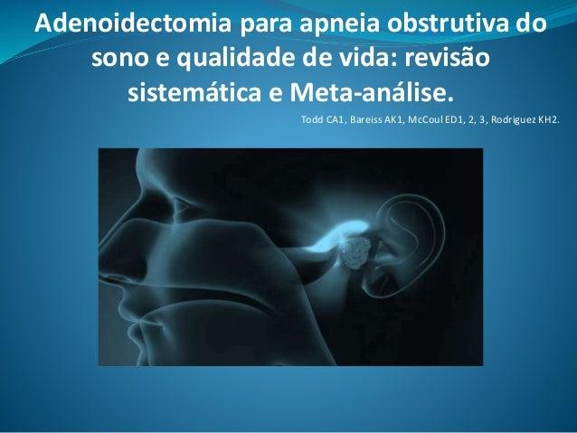 Adenoidectomia para apneia obstrutiva do sono e qualidade de vida: revisão sistemática e Meta-análise. Todd CA1, Bareiss A...