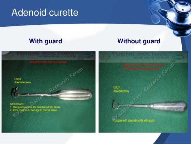 3. With gentle sweeping movement, adenoids are shaved off . Lateral masses are similarly removed with smaller curettes; sm...