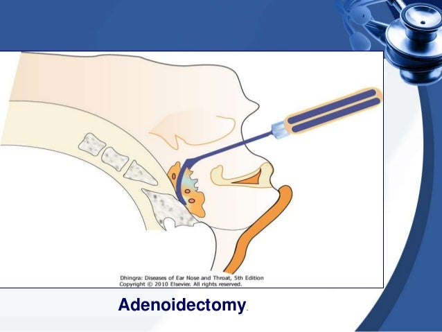 Endoscopic Adenoidectomy • These days adenoids can be removed more precisely by using a debrider under endoscopic control
