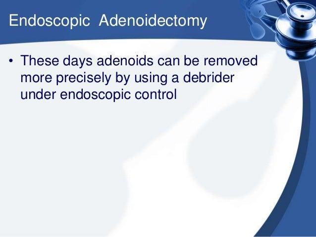 Nasal endoscopic adenoidectomy using curette