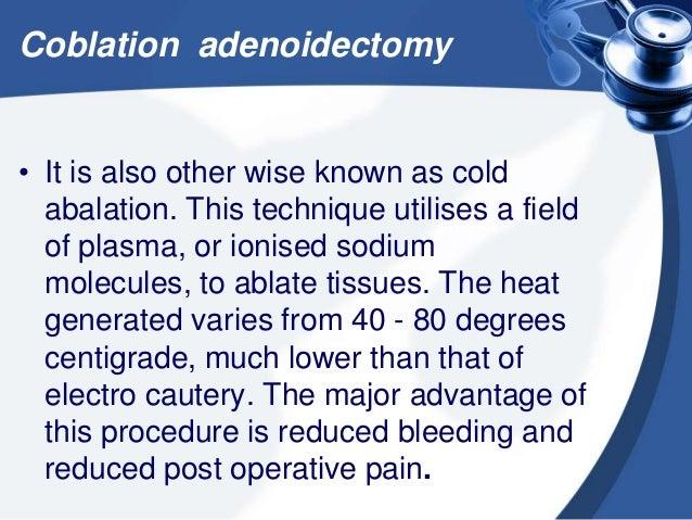 Coblation adenoidectomy